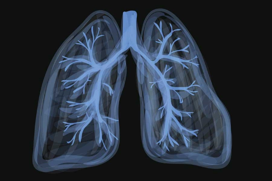 Scientists figure out how coronavirus so quickly damages lung cells