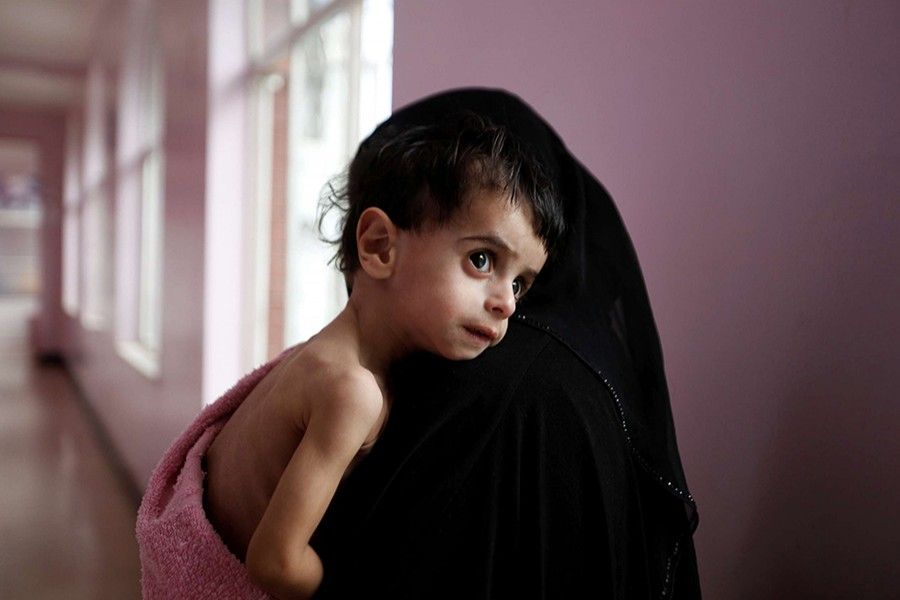 A woman holds her malnourished boy after he was weighed at a hospital malnutrition intensive care unit in Sanaa, Yemen on September 27, 2016. - Reuters file photo