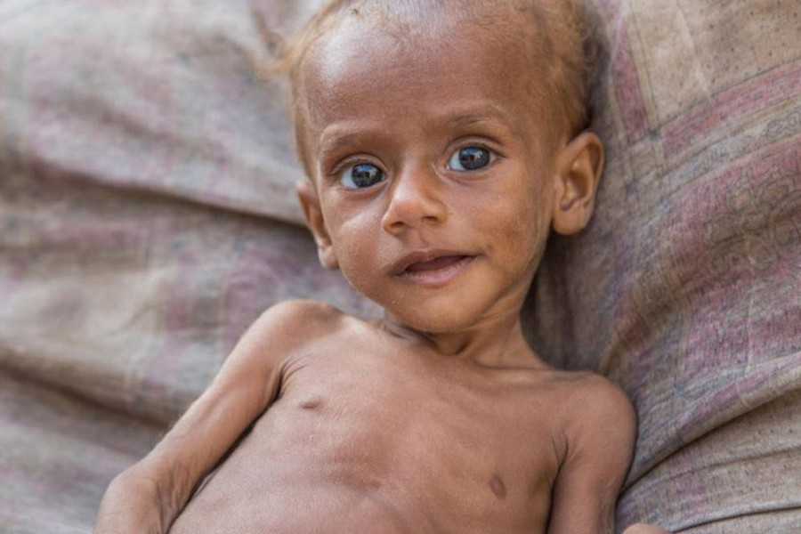 85,000 children 'die from malnutrition' in Yemen