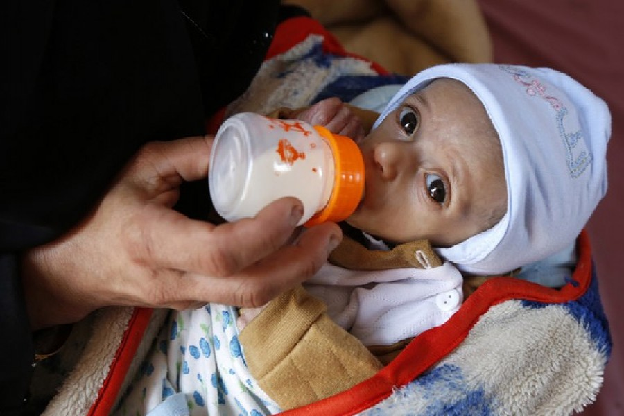 A mother feeds her malnourished child at Al-Sabeen hospital in Sanaa, Yemen, Oct. 21, 2020. (Photo by Mohammed Mohammed/Xinhua)